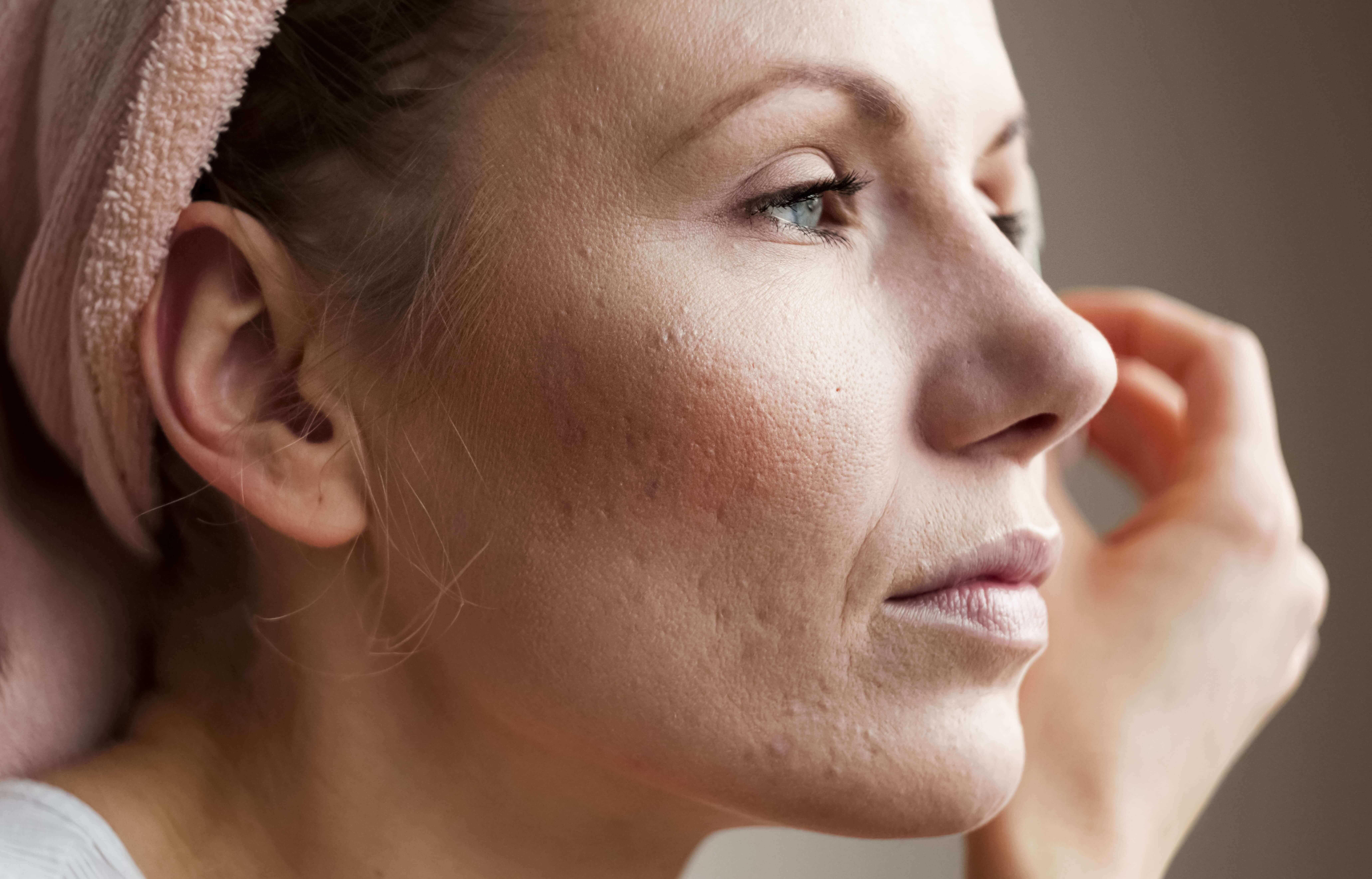 Прыщи на лице за какие органы отвечают у женщин